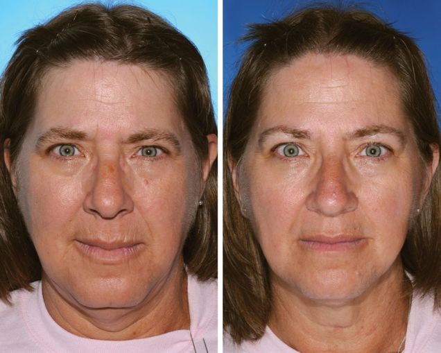 This Is What 7 Smoker vs. Non-Smoker Identical Twins Look Like After Years Of Smoking