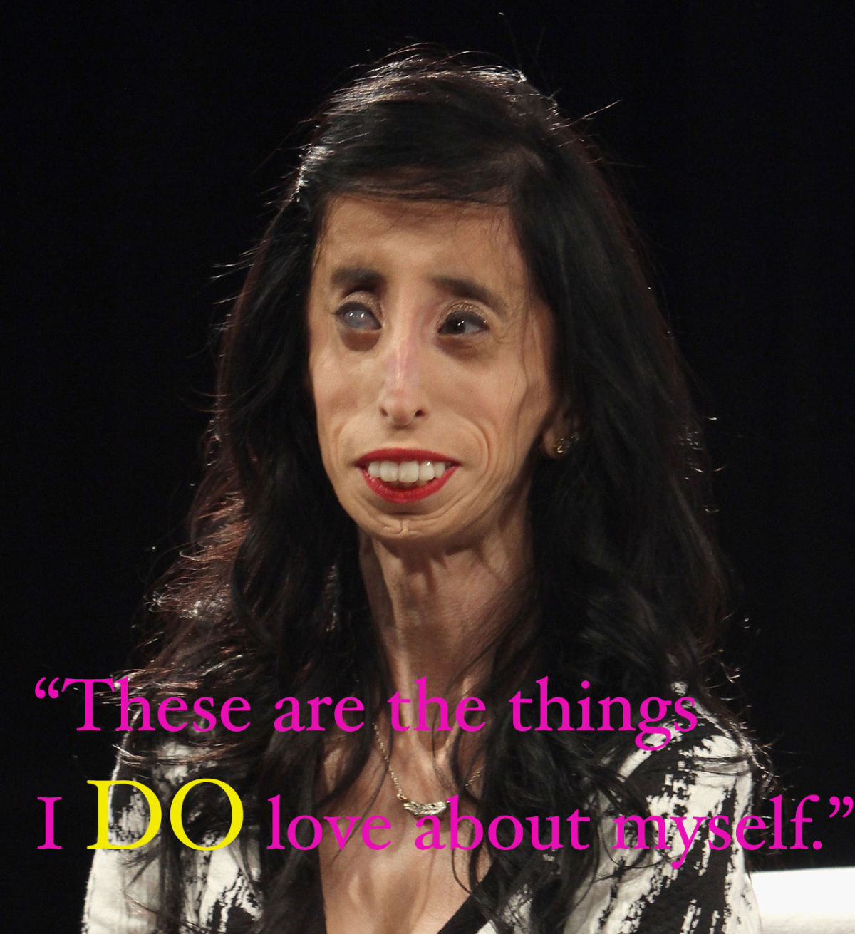 She Was Called The World's Ugliest Woman, Now She's An Inspiration