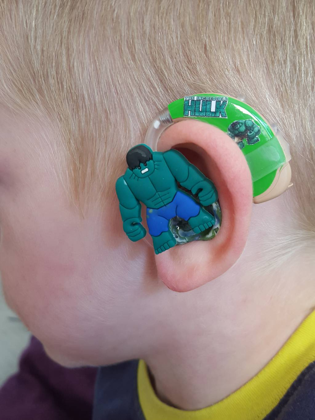 Mom Creates Awesome Hearing Aids For Her Son So He Would Feel Cool Wearing Them