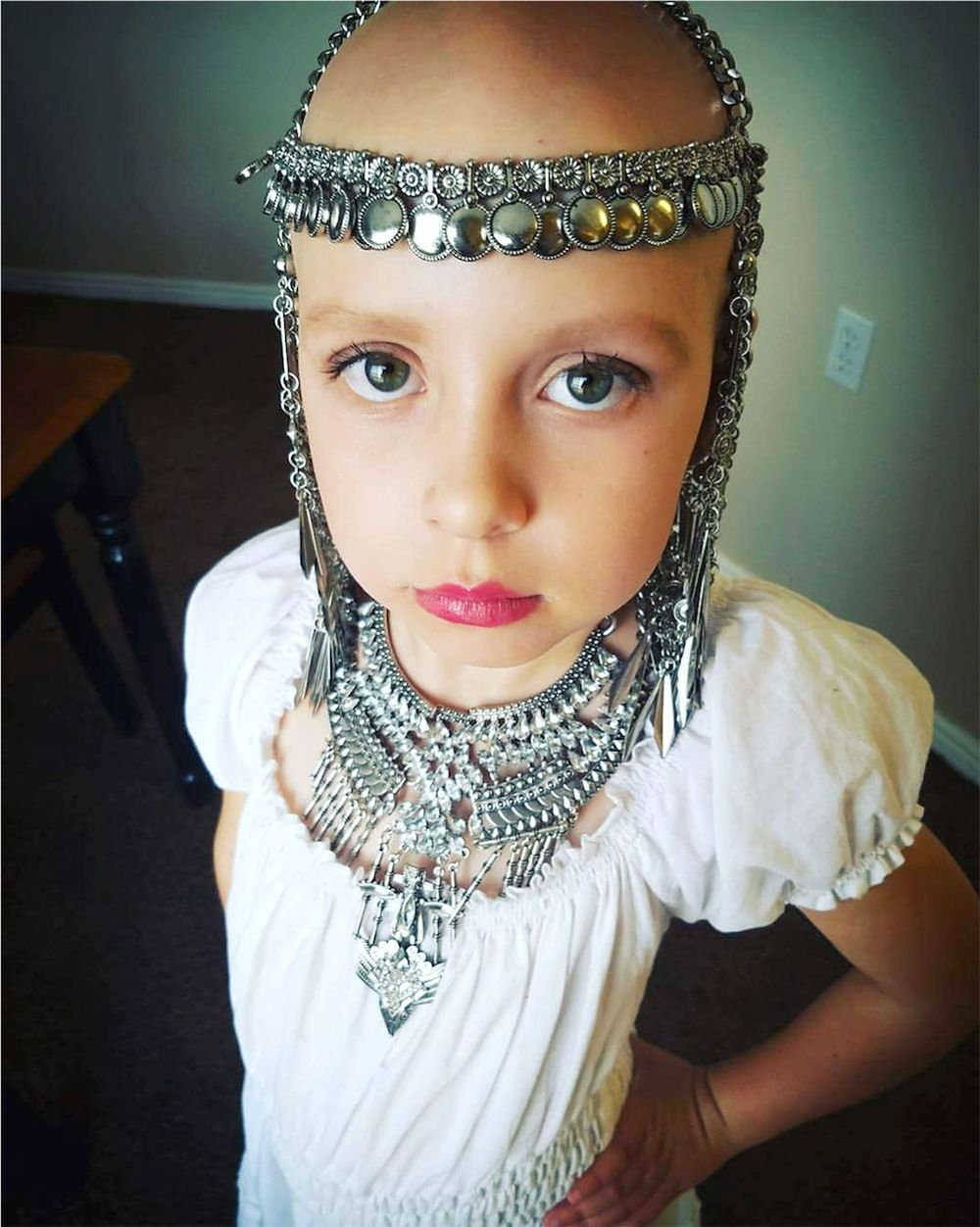 7-Year-Old Girl With Alopecia Rocks School's Crazy Hair Day